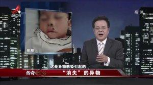 """江西卫视传奇故事-20200816-鼻腔里消失的""""异物"""",被""""吃掉""""的手指"""
